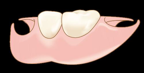 自費診療の入れ歯