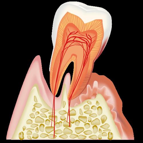 大切な歯を失うことがないように